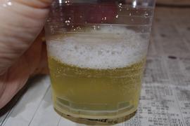 リンパ刺激で出る脂水